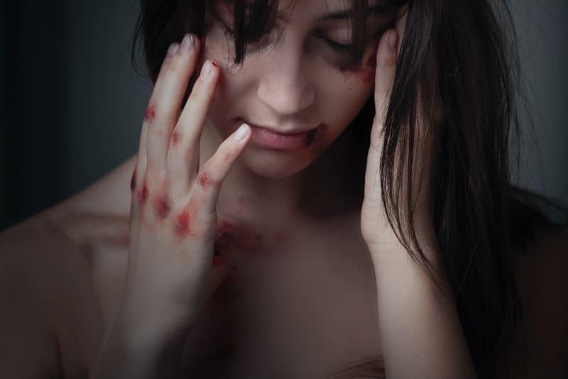 ein Foto einer missbrauchten Frau mit blauen Flecken und Wunden im Gesicht und an den Händen
